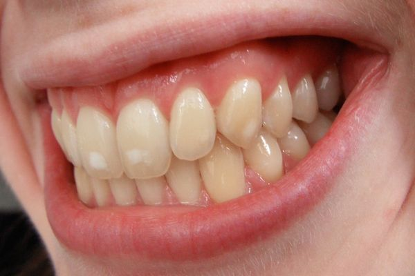 Cómo eliminar las manchas blancas de los dientes