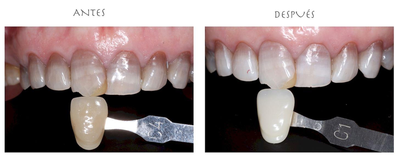 blanqueamiento dental dental morante implantes en madrid