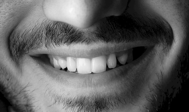 ¿Sabes en qué consiste un blanqueamiento dental?