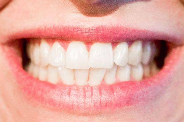 Descubre las 9 ventajas de ponerse implantes dentales