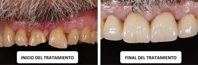 caso clinico estetica dental Coronas totalmente de cerámica