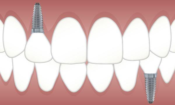 mejores implantes dentales madrid deantal morante