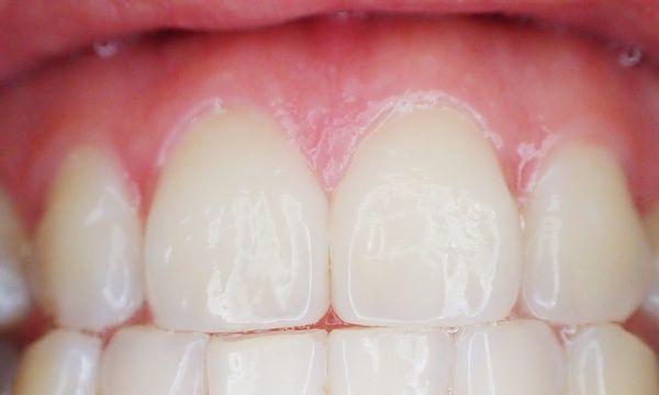 periodoncia en madrid tratamiento periodontitis